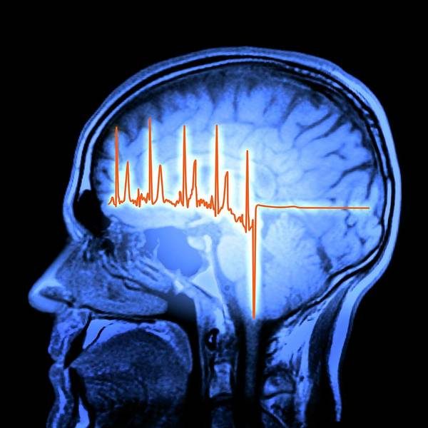 Wall Art - Photograph - Ecg Trace And Mri Brain Scan by Alfred Pasieka/science Photo Library