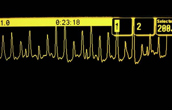Trace Photograph - Ecg Trace Of A Heart Attack by Doncaster And Bassetlaw Hospitals/science Photo Library