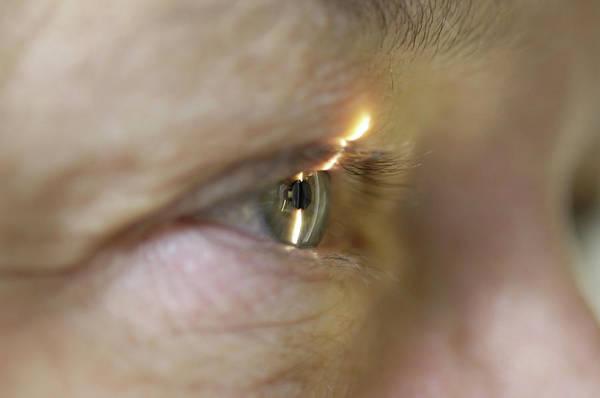 Examine Photograph - Eye Examination by Dr P. Marazzi/science Photo Library
