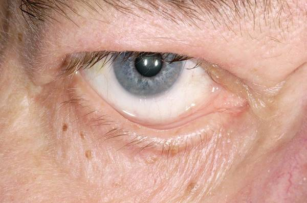 Lax Photograph - Eyelid Surgery by Dr P. Marazzi/science Photo Library