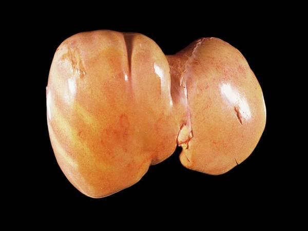 Fatty Tissue Photograph - Fatty Liver by Cnri