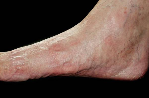 Wall Art - Photograph - Flat Foot by Dr P. Marazzi/science Photo Library