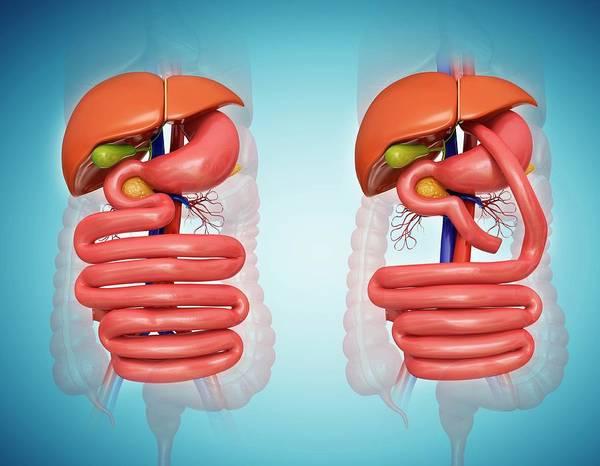 Anatomical Wall Art - Photograph - Gastric Bypass by Pixologicstudio