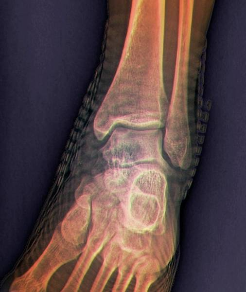 Radiological Photograph - Healthy Ankle Joint by Zephyr/science Photo Library