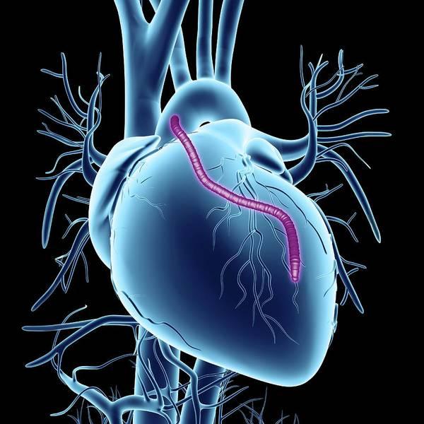 Cardiovascular Disease Wall Art - Photograph - Heart Bypass Graft by Alfred Pasieka