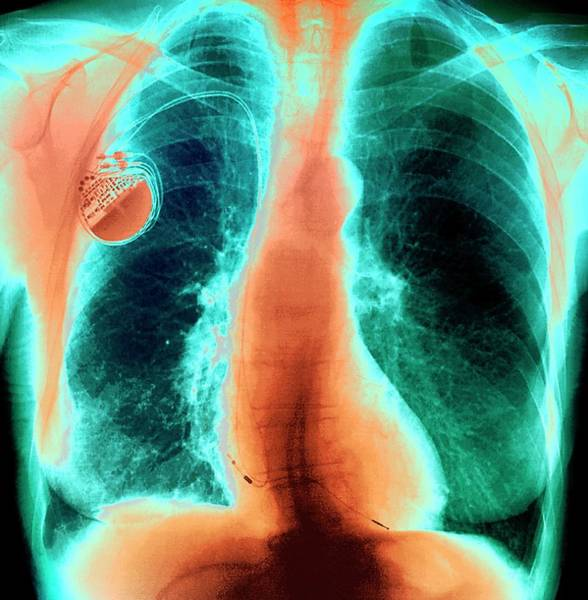 Cardiovascular Disease Wall Art - Photograph - Heart Pacemaker by Zephyr/science Photo Library