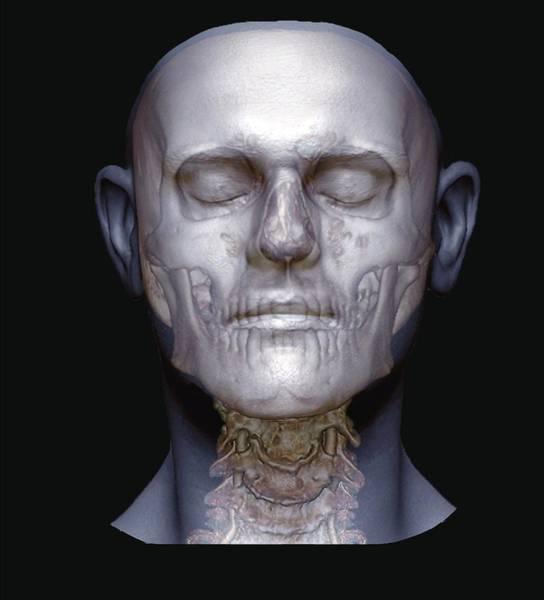 Vertebral Artery Photograph - Human Head by Zephyr/science Photo Library