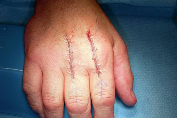 Technological Photograph - Knuckle Joint Replacement Surgery by Dr P. Marazzi/science Photo Library