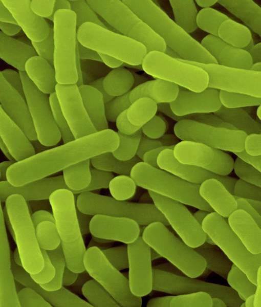 Wall Art - Photograph - Lactobacillus Sp. Gram-positive by Dennis Kunkel Microscopy/science Photo Library