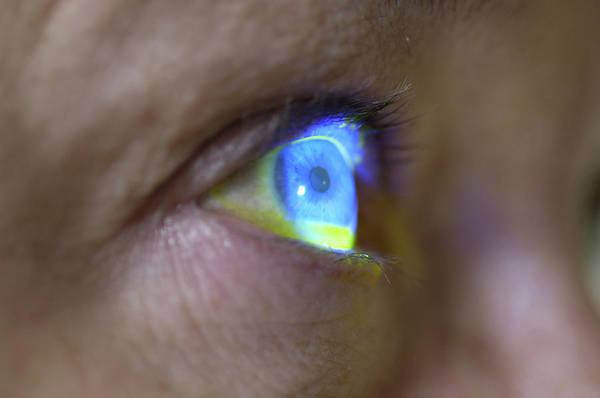 Eye Ball Photograph - Measuring Eye Pressure by Dr P. Marazzi/science Photo Library