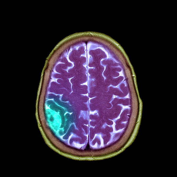 Wall Art - Photograph - Meningioma Tumour by Simon Fraser/science Photo Library