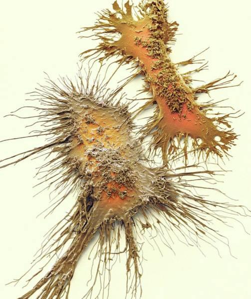 Kupffer Cell Photograph - Microglia by Steve Gschmeissner