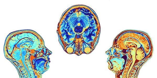 Wall Art - Photograph - Mri Scans Of Normal Brains by Alfred Pasieka/science Photo Library