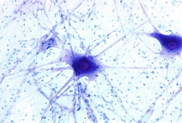 Nerve Cell Photograph - Nerve Cells by Steve Gschmeissner