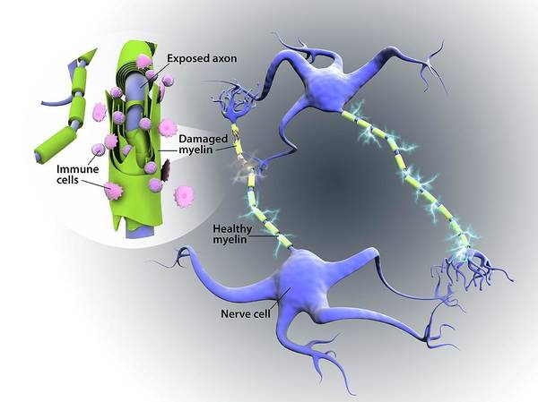 Neuron Wall Art - Photograph - Nerve Damage In Multiple Sclerosis by Gunilla Elam/science Photo Library