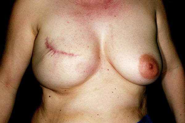 Plastic Surgery Wall Art - Photograph - Nipple Reconstruction Surgery by Mauro Fermariello/science Photo Library