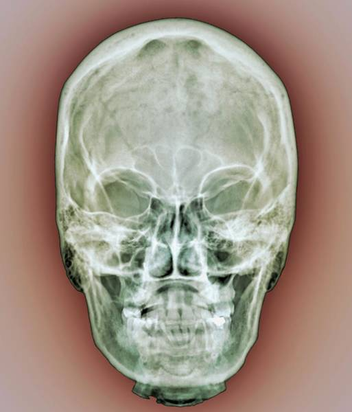 Xrays Wall Art - Photograph - Normal Skull by Zephyr/science Photo Library