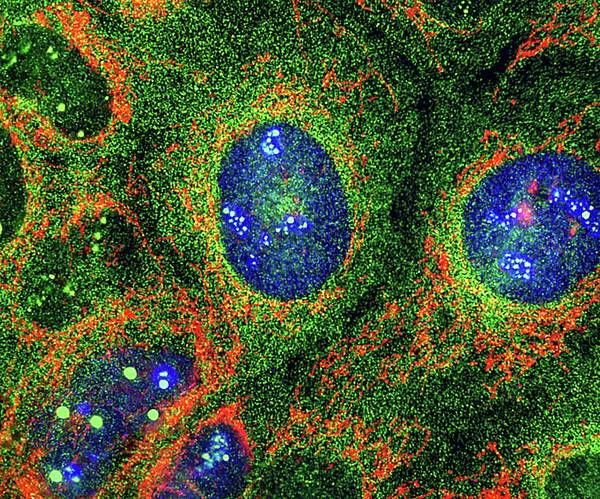 Protein Wall Art - Photograph - Osteosarcoma Cells by Nancy Kedersha
