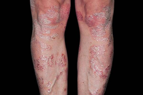 Wall Art - Photograph - Plaque Psoriasis On The Legs by Dr P. Marazzi/science Photo Library