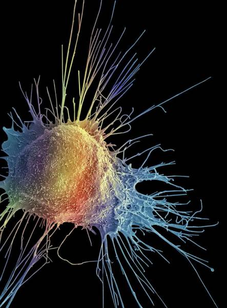 Photograph - Prostate Cancer Cell by Steve Gschmeissner