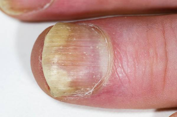 Fingernail Wall Art - Photograph - Psoriasis Of The Fingernail by Dr P. Marazzi/science Photo Library