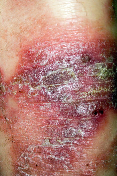 Scaling Photograph - Psoriasis Skin Disorder by Dr P. Marazzi/science Photo Library