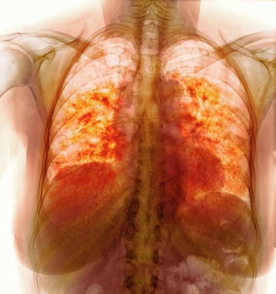 65 Photograph - Pulmonary Fibrosis by Dr P. Marazzi/science Photo Library