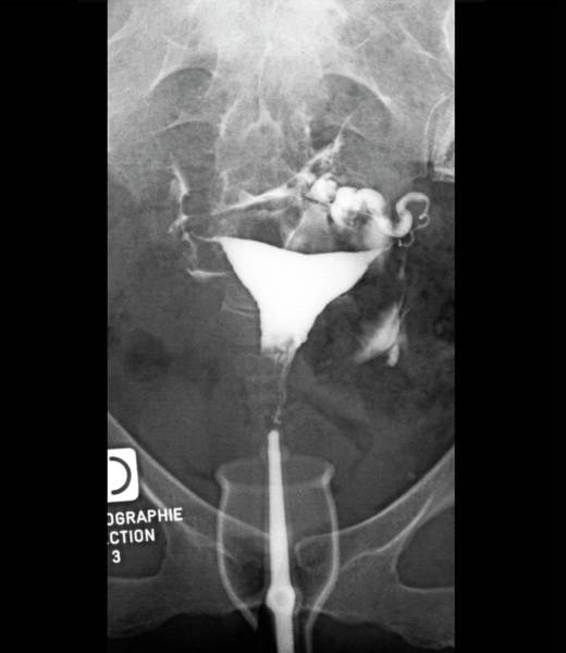 Wall Art - Photograph - Retroverted Uterus by Zephyr/science Photo Library
