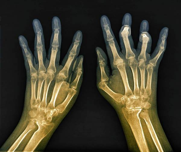 Wall Art - Photograph - Rheumatoid Arthritis Of The Hands by Zephyr/science Photo Library