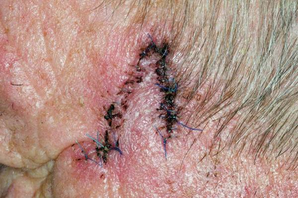 Wall Art - Photograph - Scar After Skin Cancer Removal by Dr P. Marazzi/science Photo Library