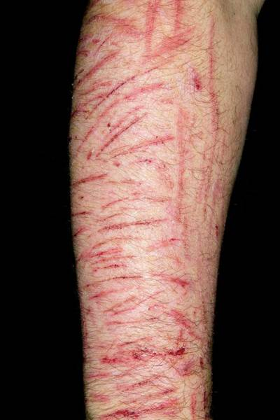 Forties Photograph - Self Harm by Dr P. Marazzi/science Photo Library