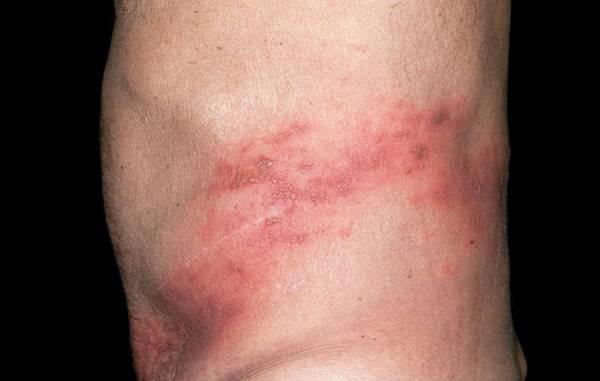 Shingles Photograph - Shingles Rash On The Back by Dr P. Marazzi/science Photo Library