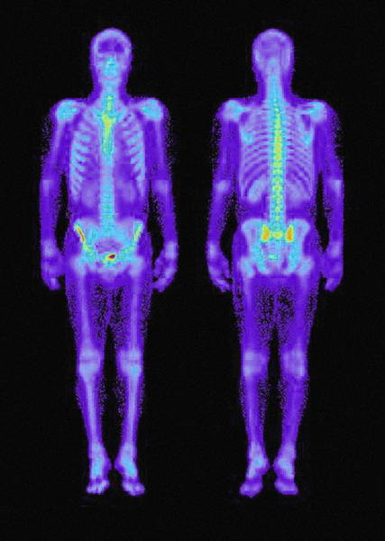 Wall Art - Photograph - Skeleton Gamma Scans by Rvi Medical Physics, Newcastle/simon Fraser/science Photo Library