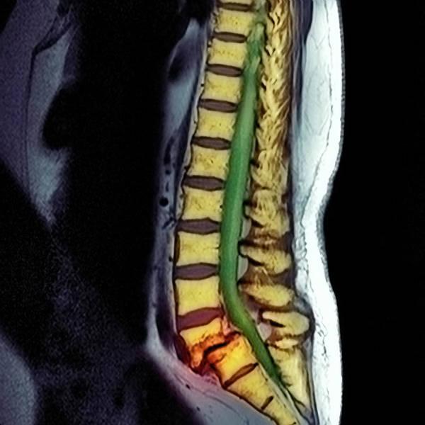 Vertebrae Photograph - Slippage Of A Vertebra by Simon Fraser/science Photo Library