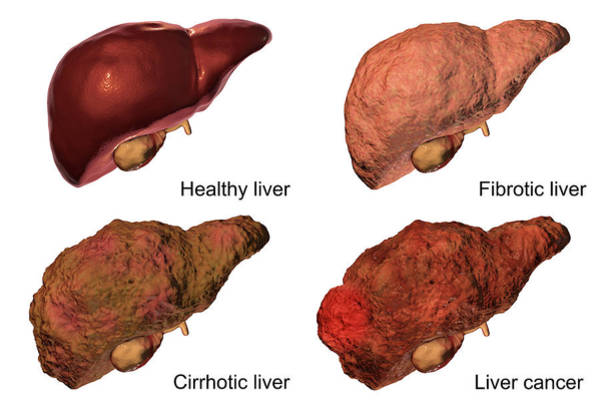 Wall Art - Photograph - Stages Of Liver Disease by Kateryna Kon/science Photo Library