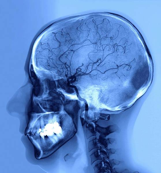 Cerebral Angiogram Photograph - Stroke Treatment by Zephyr/science Photo Library