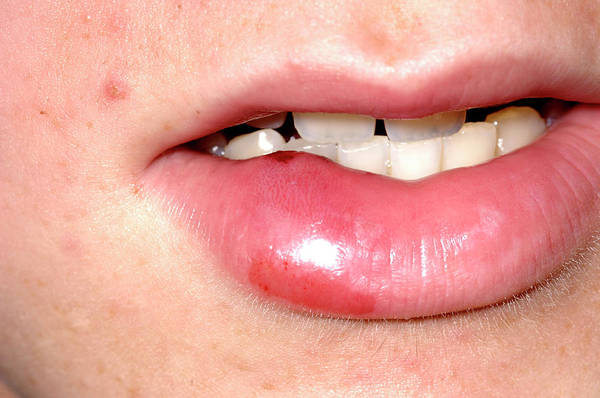 Lips Photograph - Swollen Lip by Dr P. Marazzi/science Photo Library