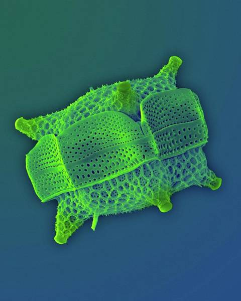 Bacillariophyceae Wall Art - Photograph - Triceratium Dubium by Dennis Kunkel Microscopy/science Photo Library