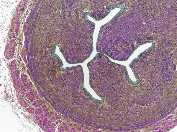 Histology Photograph - Ureter by Steve Gschmeissner