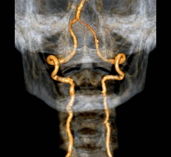 Vertebral Artery Photograph - Vertebral Artery Insufficiency by Zephyr