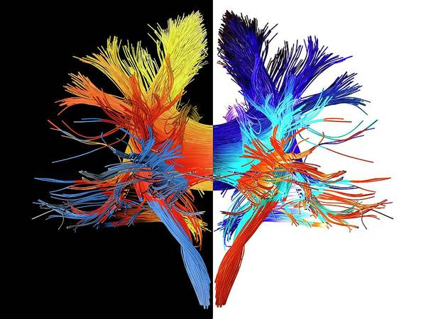 Nervous System Photograph - White Matter Fibres Of The Human Brain by Alfred Pasieka