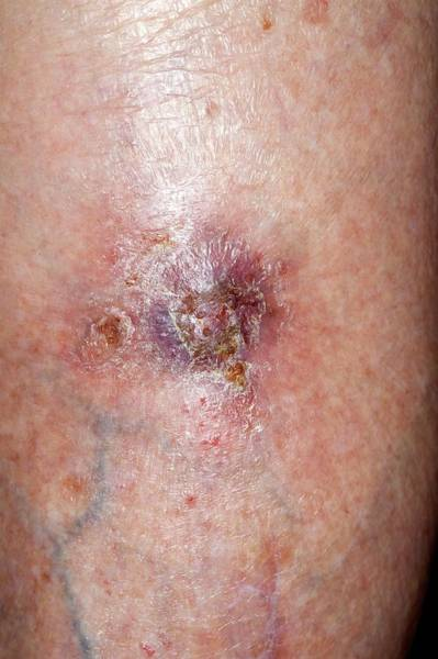 Heal Wall Art - Photograph - Wound After Skin Cancer Removal by Dr P. Marazzi/science Photo Library