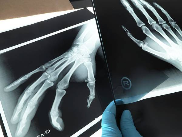 Diagnosis Wall Art - Photograph - X-rays Of Hands by Tek Image