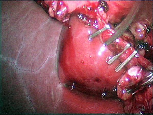 Cystic Duct Photograph - Gallbladder Removal Surgery by Dr P. Marazzi/science Photo Library