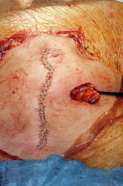 Wall Art - Photograph - Bowel Cancer Surgery by Dr P. Marazzi/science Photo Library