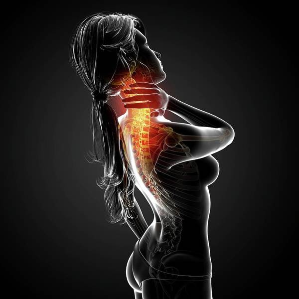 Wall Art - Photograph - Neck Pain by Pixologicstudio/science Photo Library