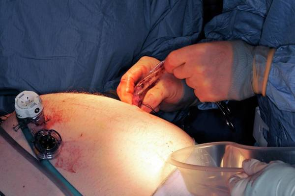 Wall Art - Photograph - Gallbladder Removal Surgery by Dr P. Marazzi/science Photo Library