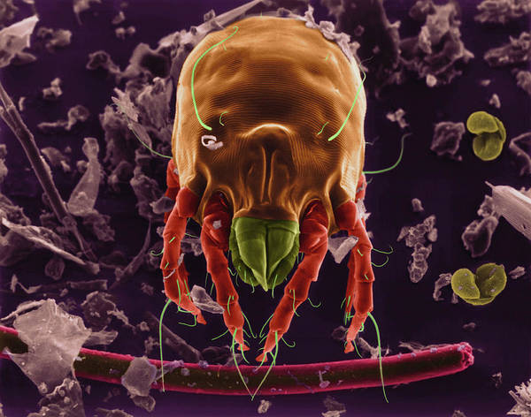 Wall Art - Photograph - Dust Mite by Dennis Kunkel Microscopy/science Photo Library