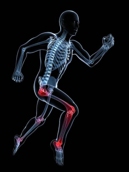 Wall Art - Photograph - Knee Pain by Sciepro/science Photo Library