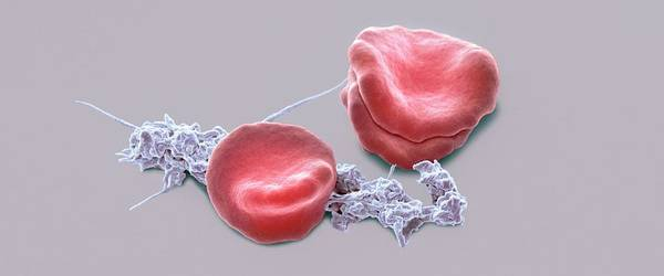 Wall Art - Photograph - Blood From Wound Site by Steve Gschmeissner/science Photo Library